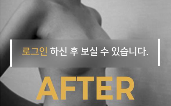 가슴확대 수술 After