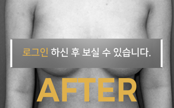 가슴확대수술 After