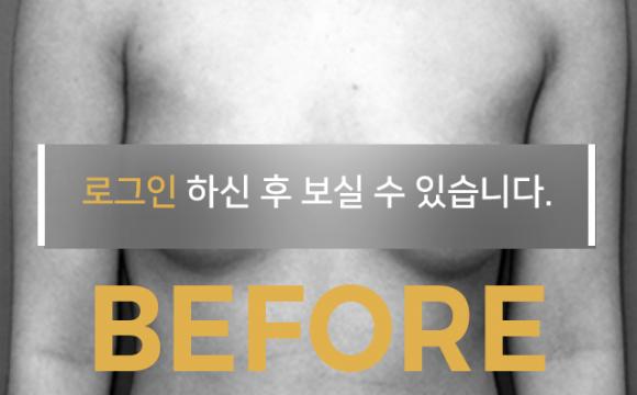 가슴확대수술 Before