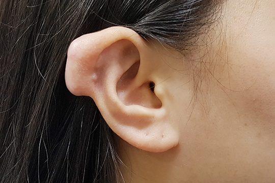 귀 켈로이드 발생 사진